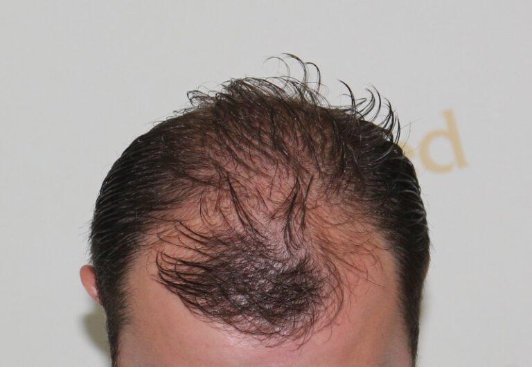 Deamed - hair transplantation results / თმის გადანერგვის შედეგები