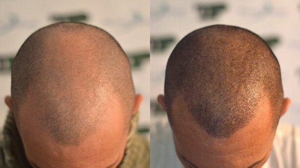Tmis gadanergvis fasebi / Hair transplant prices
